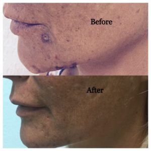 prp for skin rejuvenation