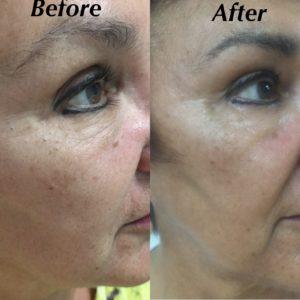 prp for skin rejuvenation micro-needling